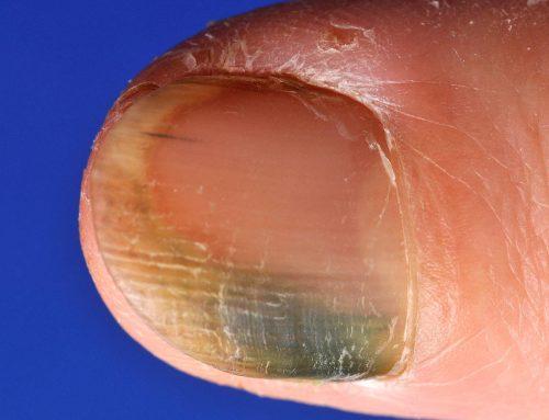 Pseudomas nagel